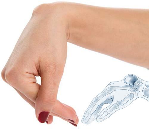 Двухсторонний артроз тазобедренного сустава лечение